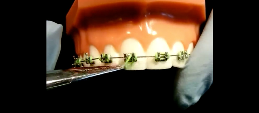 Braces Problems? Watch here for answers