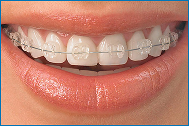 clearBraces_guelphortho